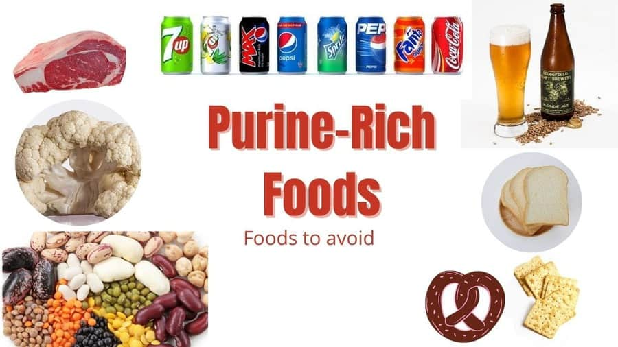 purine rich foods